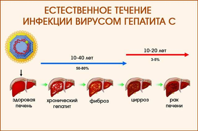 сколько живут с гепатитом в