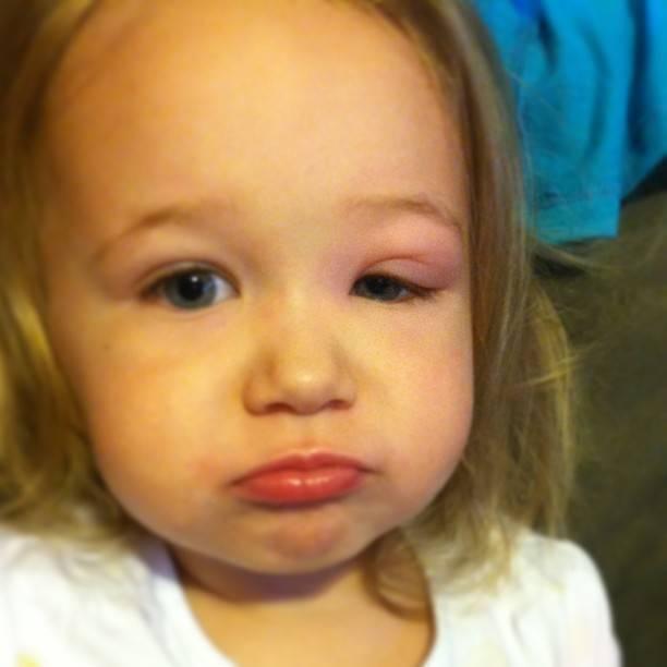 Опух глаз у ребенка:  вопросы по офтальмологии