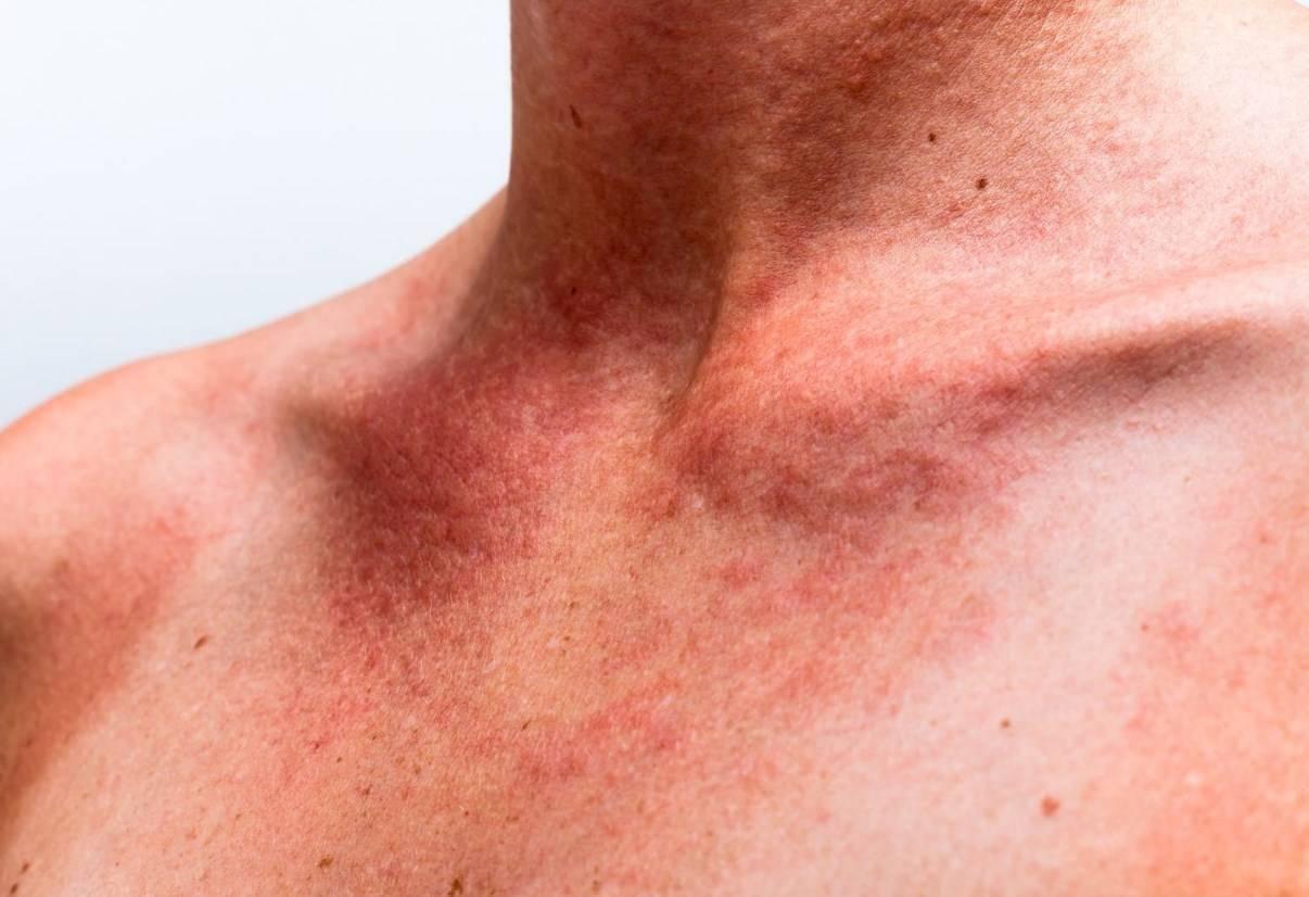 Солнечный дерматит: симптомы, лечение, фото