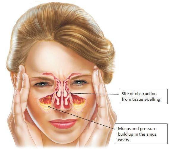 Почему болит голова при насморке: затылок, лоб или другая часть