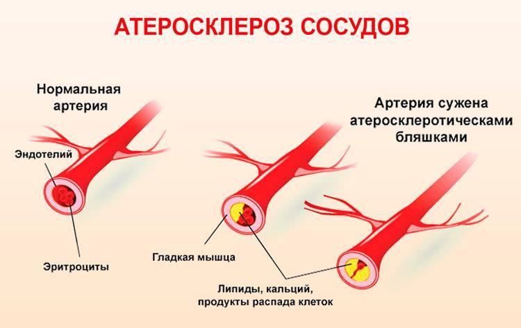 ишемический атеросклероз головного мозга