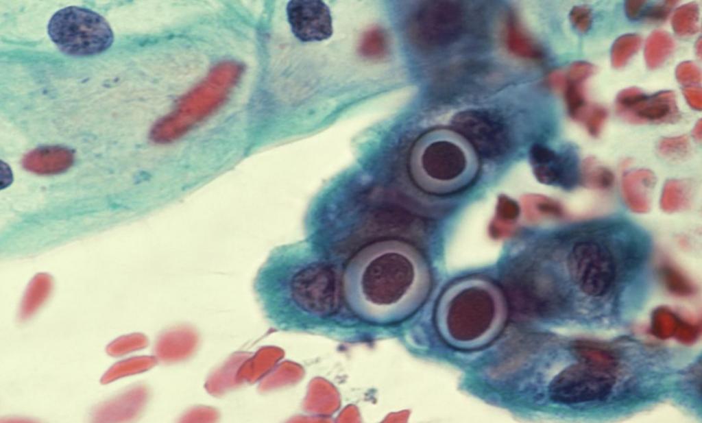 хламидии в легких