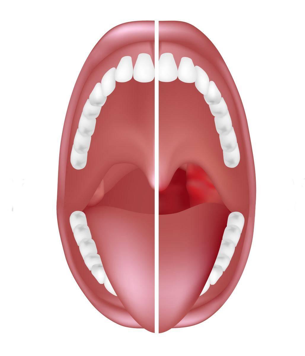 Как вызвать боль в горле - wikihow
