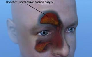 Болит лобная пазуха носа: что делать, причины и лечения