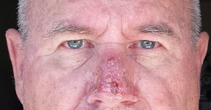 злокачественные опухоли носа