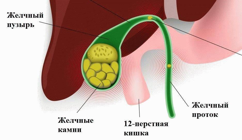 желчный пузырь отключен лечение