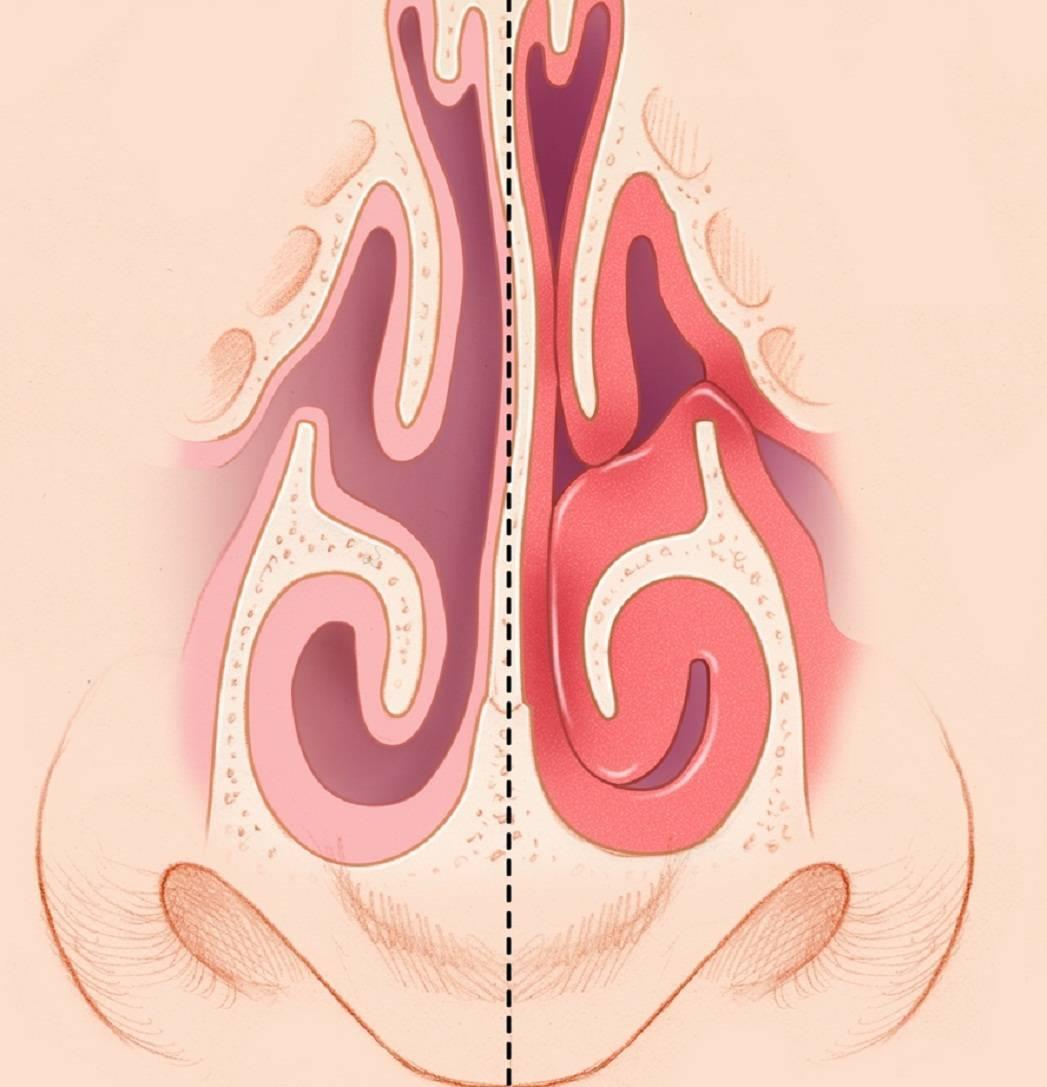 Как лечить вазомоторный ринит у взрослых