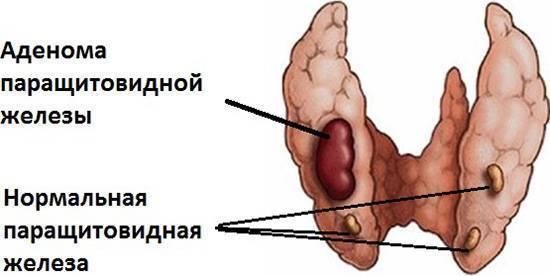 Аденома паращитовидной железы: симптомы, методы лечения — симптомы