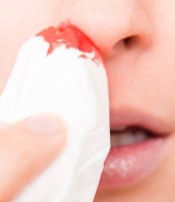Носовые кровотечения при беременности: причины. что делать, если у беременной идёт кровь из носа - spuzom.com