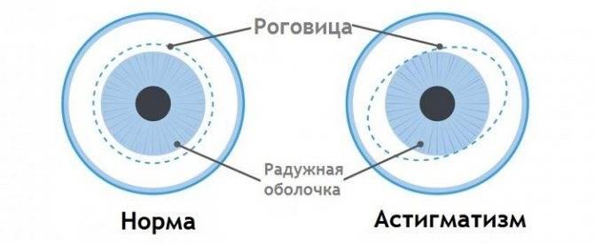 сложный гиперметропический астигматизм обоих глаз