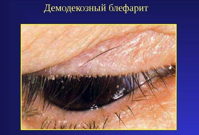 Что такое блефарит и как его лечить - причины воспаления, виды, проявления и профилактика