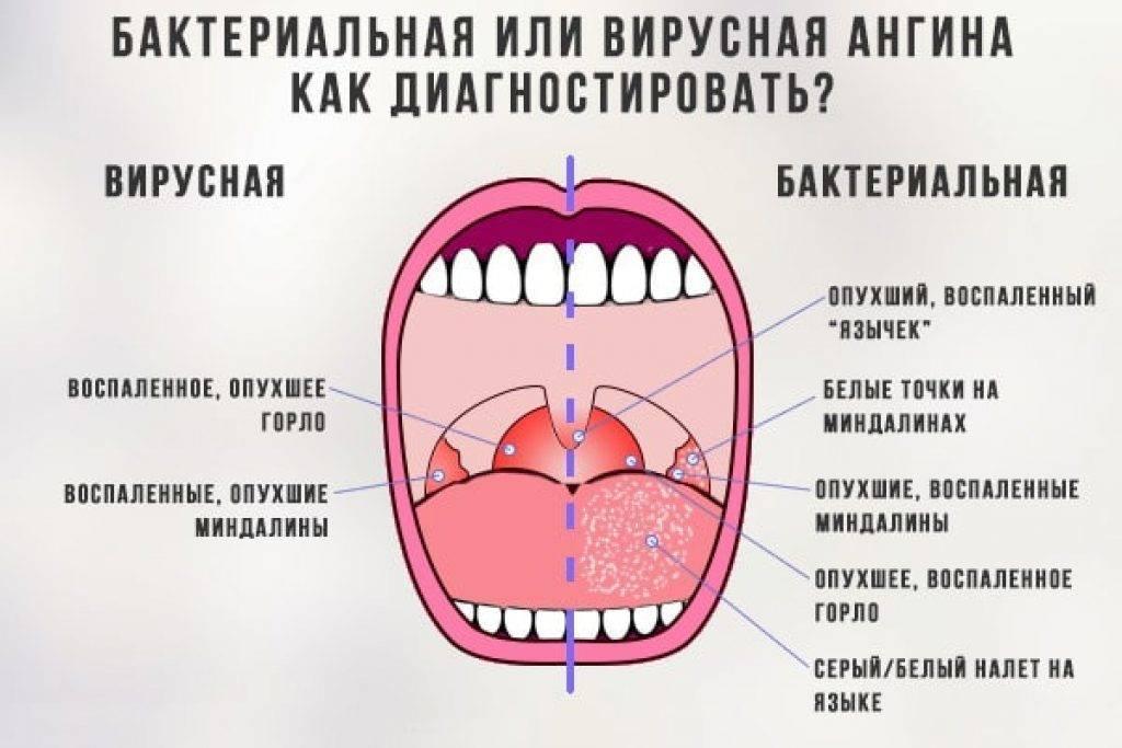 частые ангины у взрослого причины