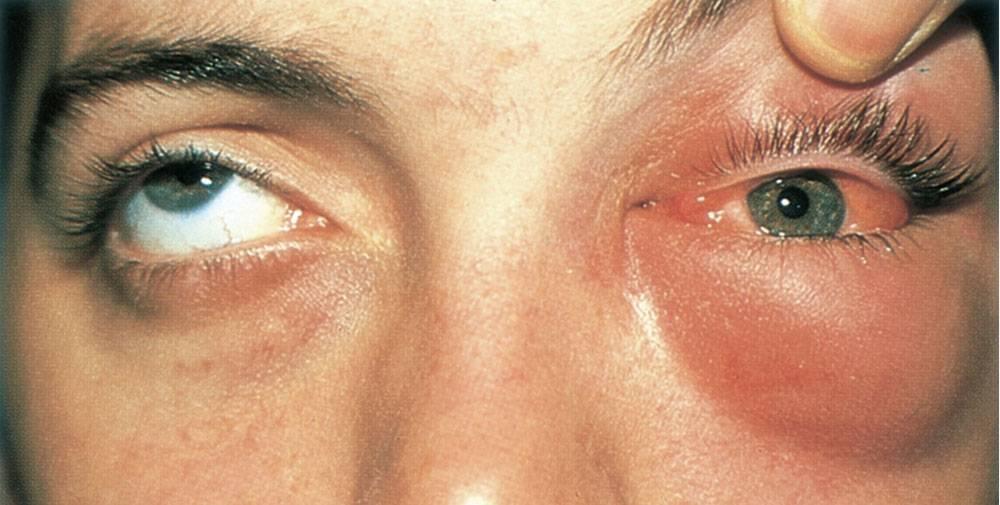 Продуло лицо болят глаза