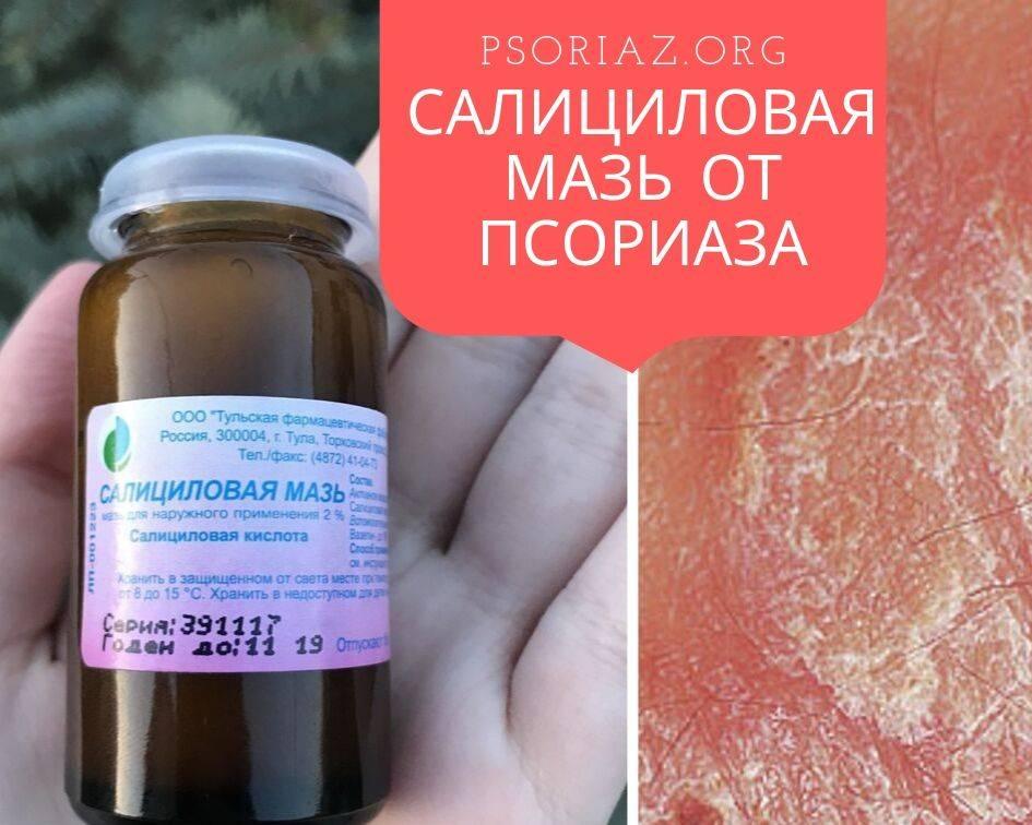 салициловая мазь псориаз