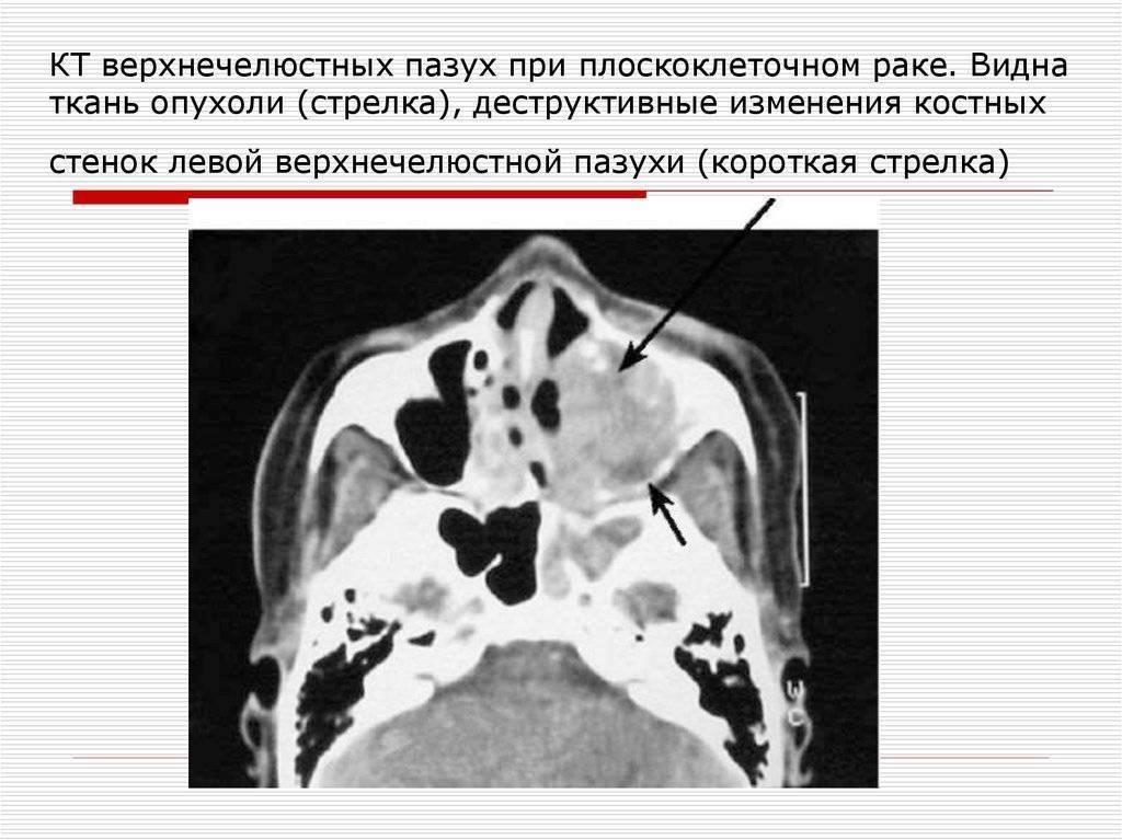 Гипертрофия слизистой верхнечелюстных пазух