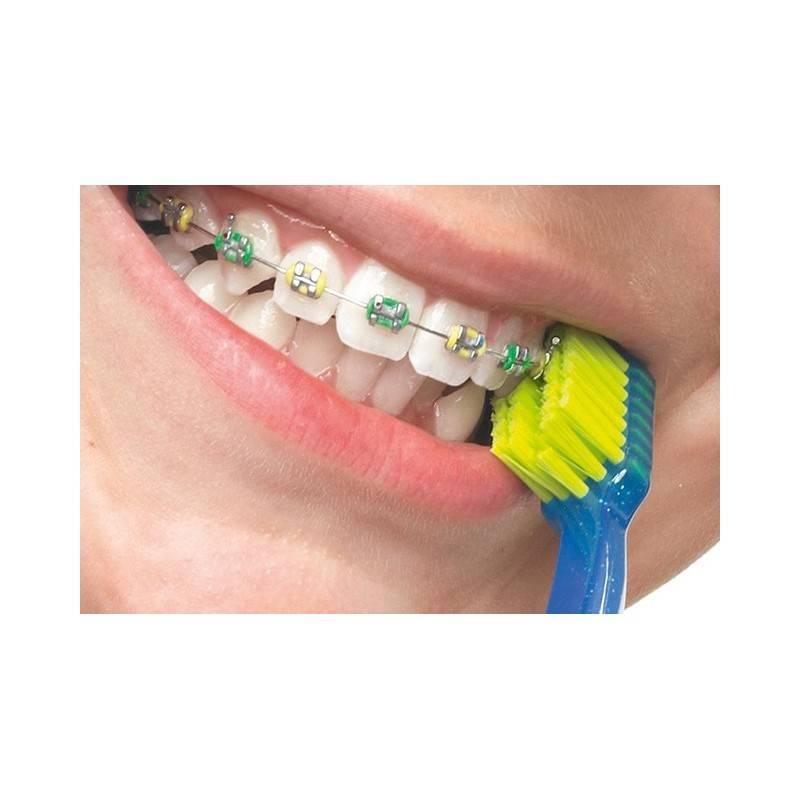Как правильно чистить зубы с брекетами после еды с помощью: зубной щётки; специальной ортодонтической зубной щётки; монопучковой щетки; ёршиком; зубной нитью; ирригатором для полости рта. что нельзя есть если носишь брекеты | inwomen