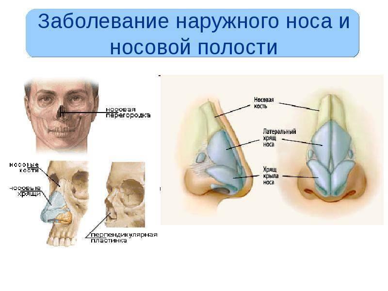заболевания слизистой носа
