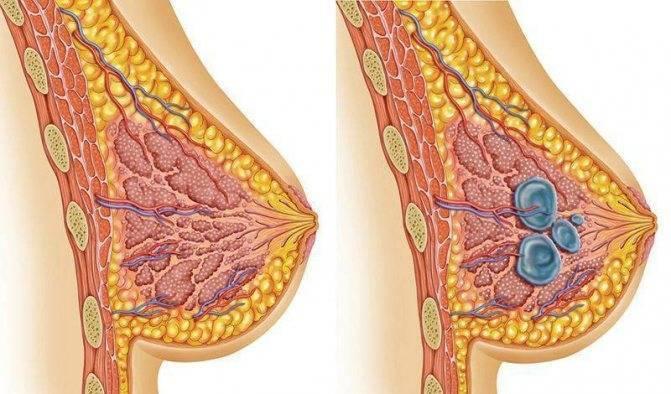 Заболевания молочных желез у женщин