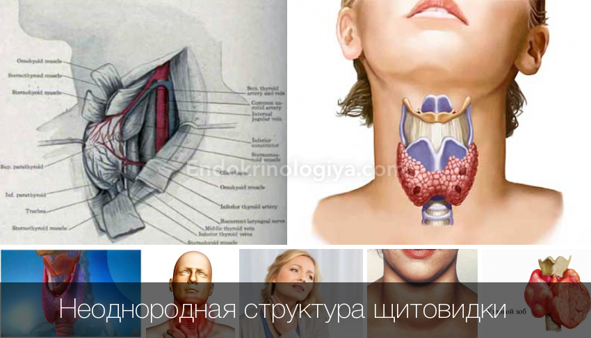 Узи щитовидной железы. строение и вид щитовидки на снимке. подготовка. важные особенности