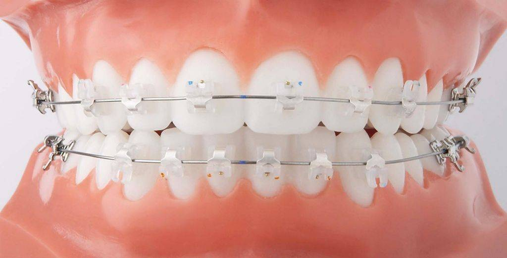 Самолигирующие брекеты в москве - цены от 655 рублей, адреса стоматологий, отзывы пациентов