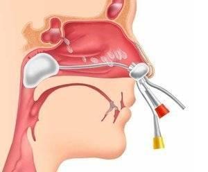 Лечение гайморита в домашних условиях: симптомы, эффективные средства
