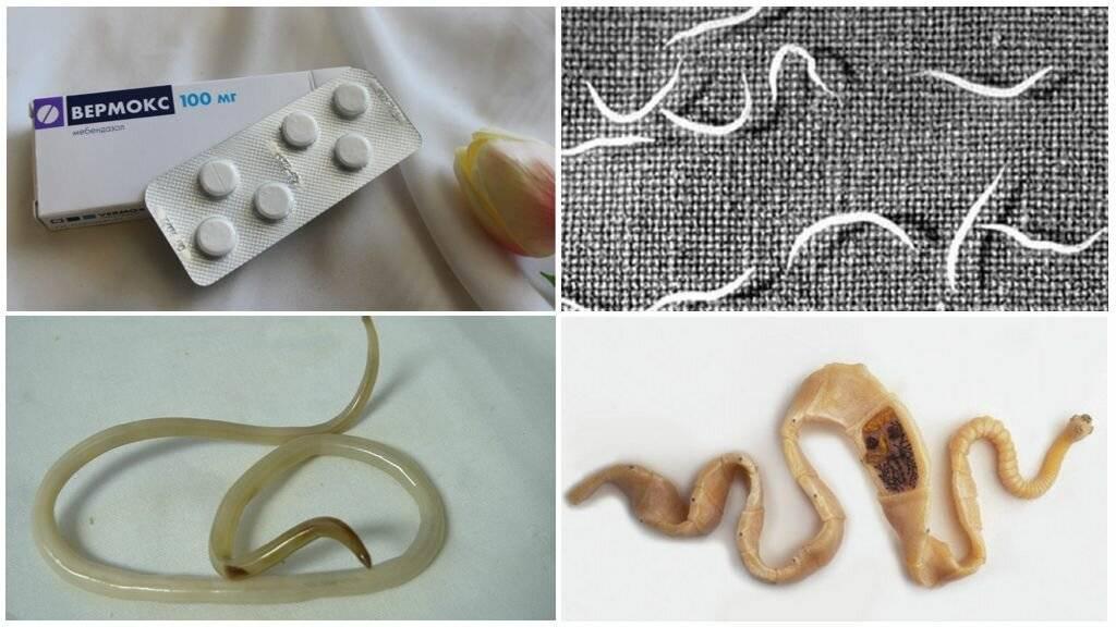 глисты у детей симптомы и лечение народными средствами