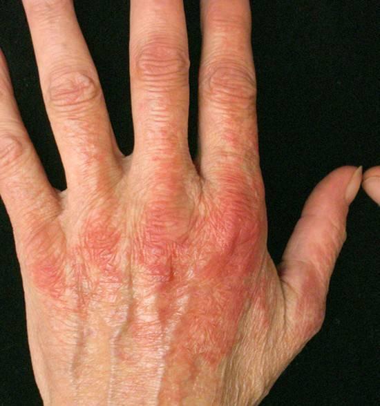 гусеничный дерматит