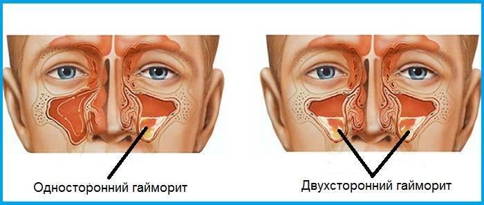 Cимптомы гайморита у взрослых: первые признаки, как проявляется, фото
