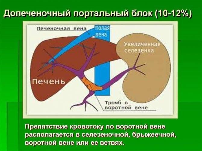 Портальная гипертензия при циррозе печени