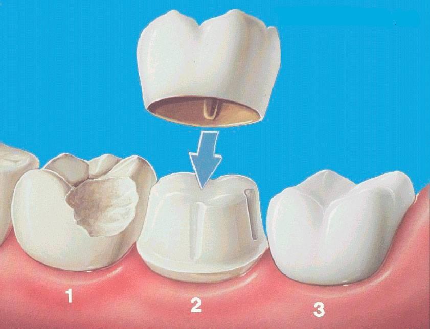 Как ставят коронку на зуб — этапы установки зубных изделий, цены, фото