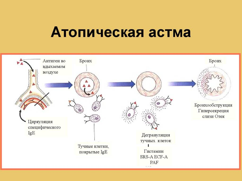 Нашла статью про атопический дерматит. мне она показалась супер информативной.