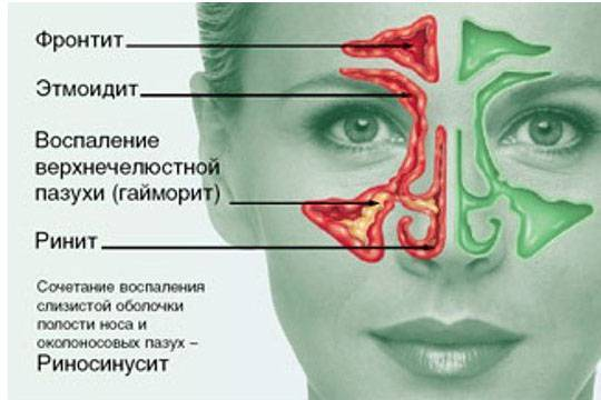 двухсторонний риносинусит