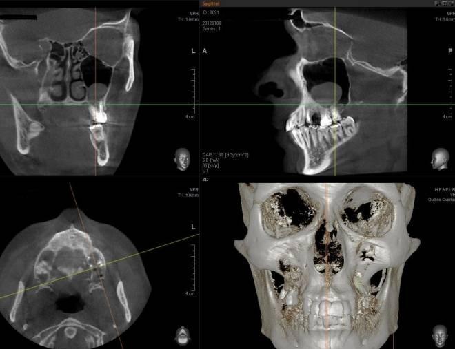 Киста в гайморовой пазухе: лечение. ответы доктора, операция