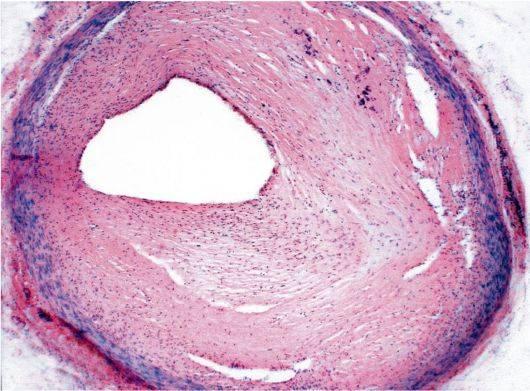 Симптомы и способы лечения атеросклероза аорты брюшной полости