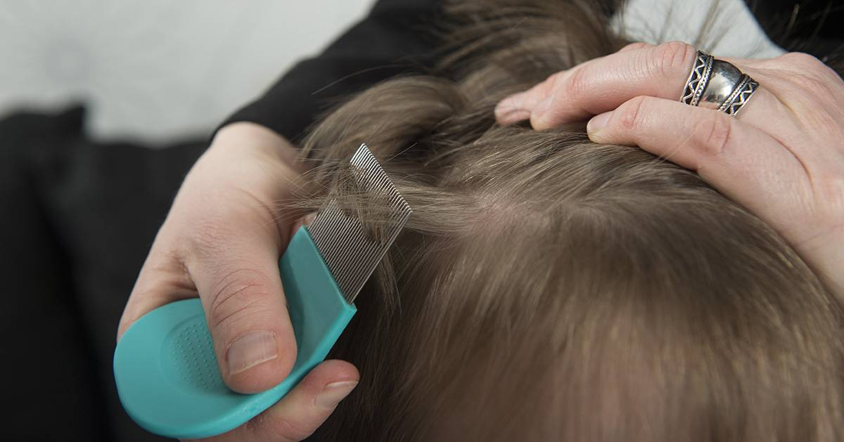 можно ли избавиться от вшей покрасив волосы