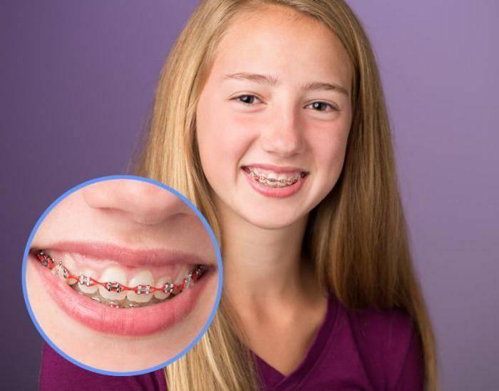 брекеты болят зубы
