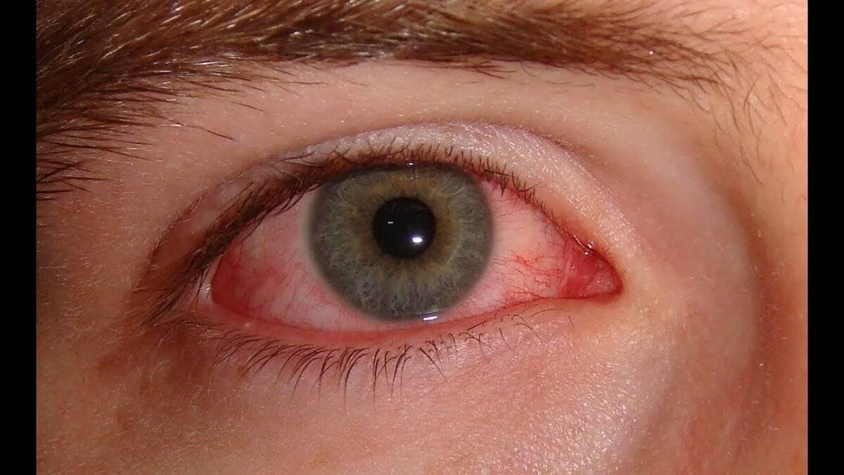 Определение эписклерита глаза. причины и заболевания, вызывающие доброкачественное воспаление