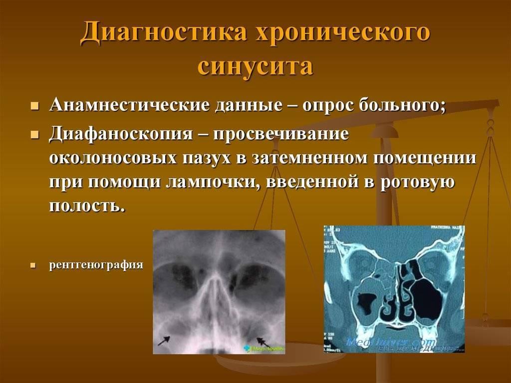 Острый и хронический синусит (гайморит, фронтит, этмоидит)
