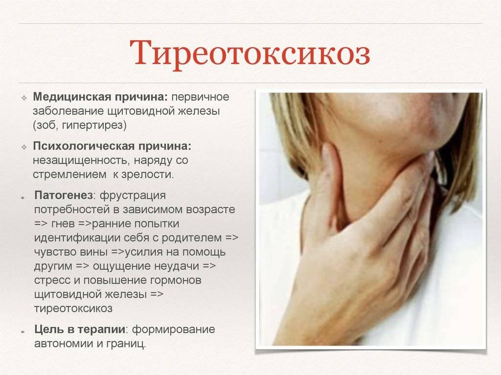 гипертиреоз щитовидной железы у женщин