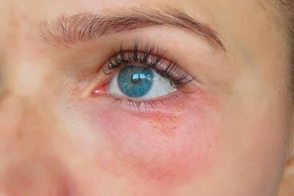 красное пятно над глазом