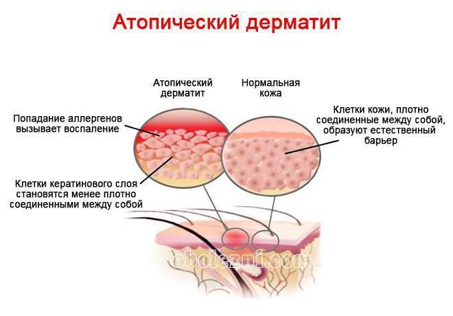 Может ли дерматит пройти сам по себе