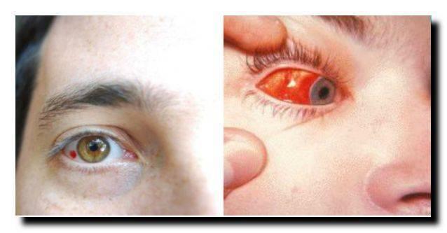 Насморк и слезятся глаза: что делать, чем и как лечить