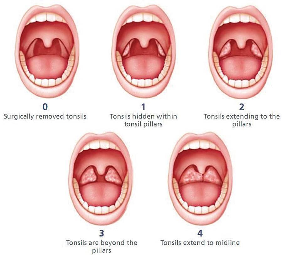 Проведение операции по удалению миндалин при хроническом тонзиллите и реабилитация после