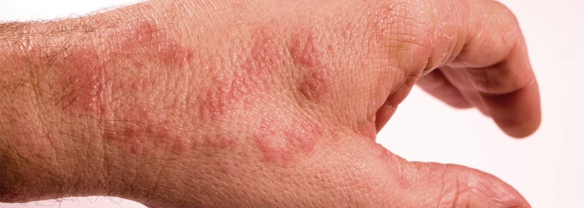 Дерматит: лечение мазями и кремами