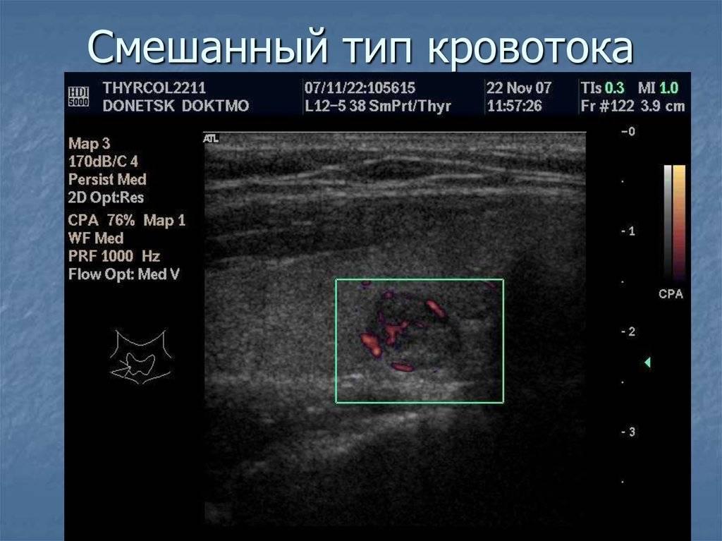 Перинодулярный кровоток узла щитовидной железы это | про щитовидку