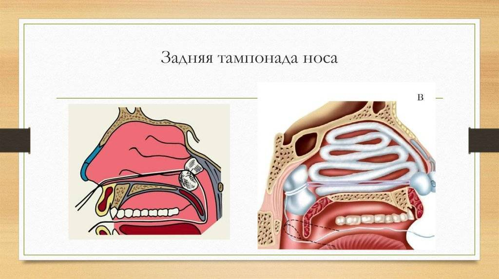 передняя и задняя тампонада носа