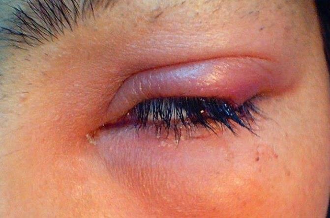 Причины появления герпеса на глазу и как его лечат
