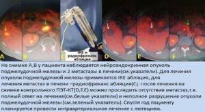 Особенности химиотерапии при раке печени