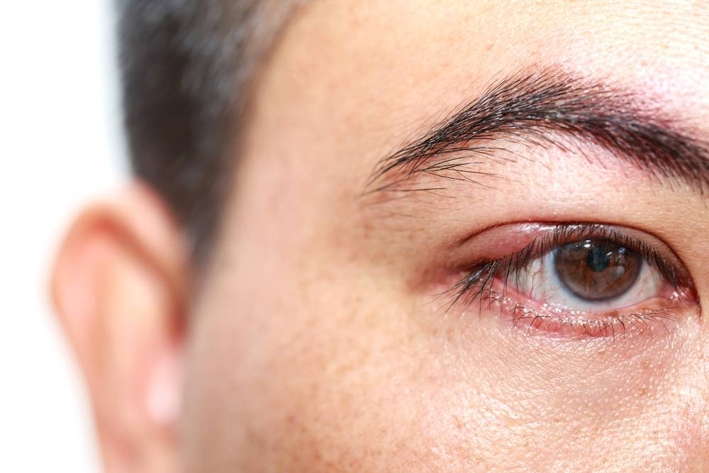 Ячмени на глазах один за одним появляются, что делать если замучали