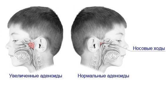 аденоиды второй степени у ребенка